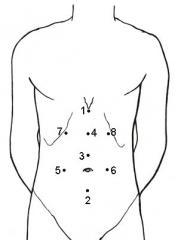 Châm cứu 8 điểm vùng bụng