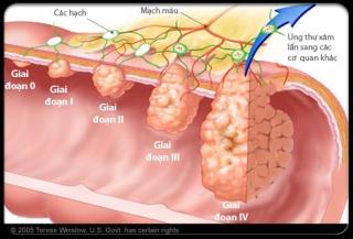 Các giai đoạn ung thư đại tràng