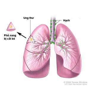 Phẫu thuật ung thư phế nang