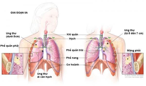 Ung thư phổi giai đoạn II