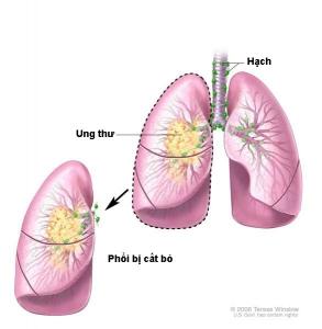 Phẫu thuật ung thư cả lá phổi