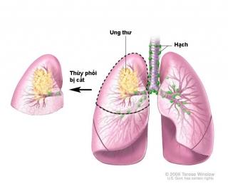 Phẫu thuật ung thư thùy phổi