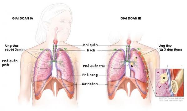 Ung thư phổi giai đoạn I