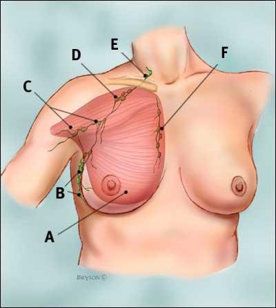 Hạch bạch huyết ở vùng ngực