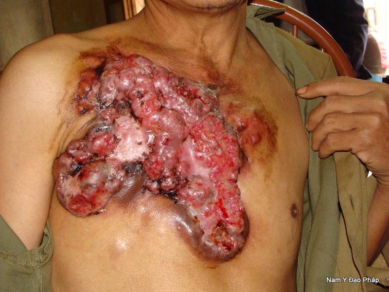 ten benh tieng anh Bnh ung th carcinomatosis